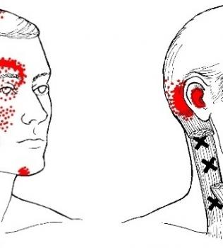 Har du ofta huvudvärk? Då är sannolikheten stor att den är spänningsrelaterad.